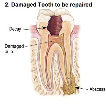 endodontic-photo-b