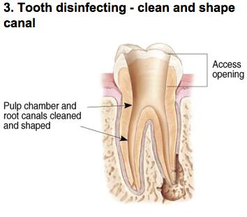 endodontic-photo-c