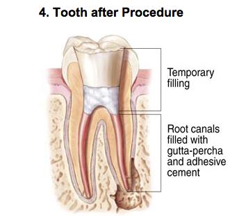 endodontic-photo-d1