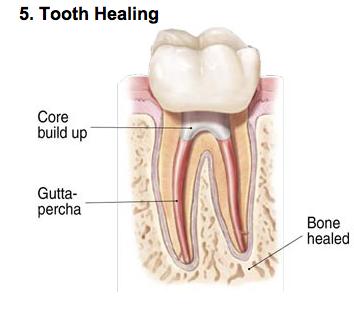endodontic-photo-e